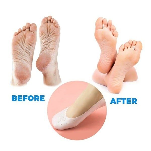 Silicone Smiling Foot (Protection des Pieds)